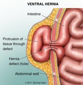 ventral-hernia